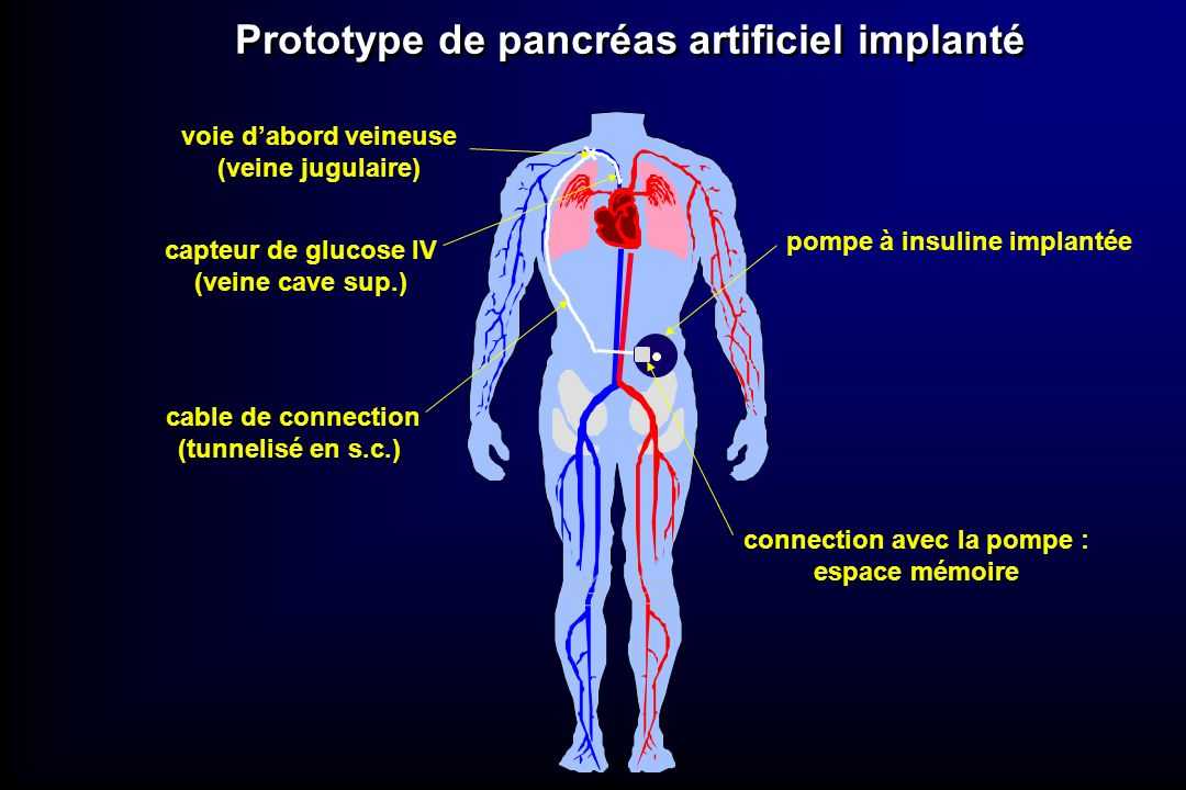 Prototype de pancréas artificiel implanté