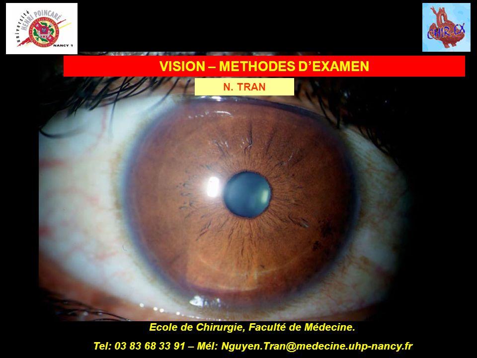 VISION – METHODES D'EXAMEN