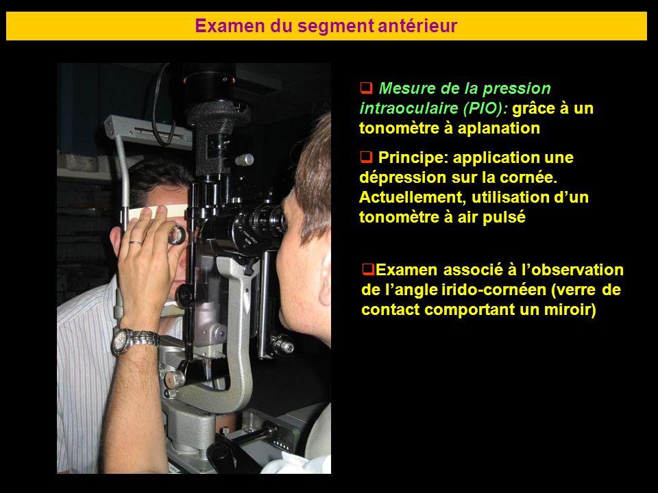 Examen du segment antérieur