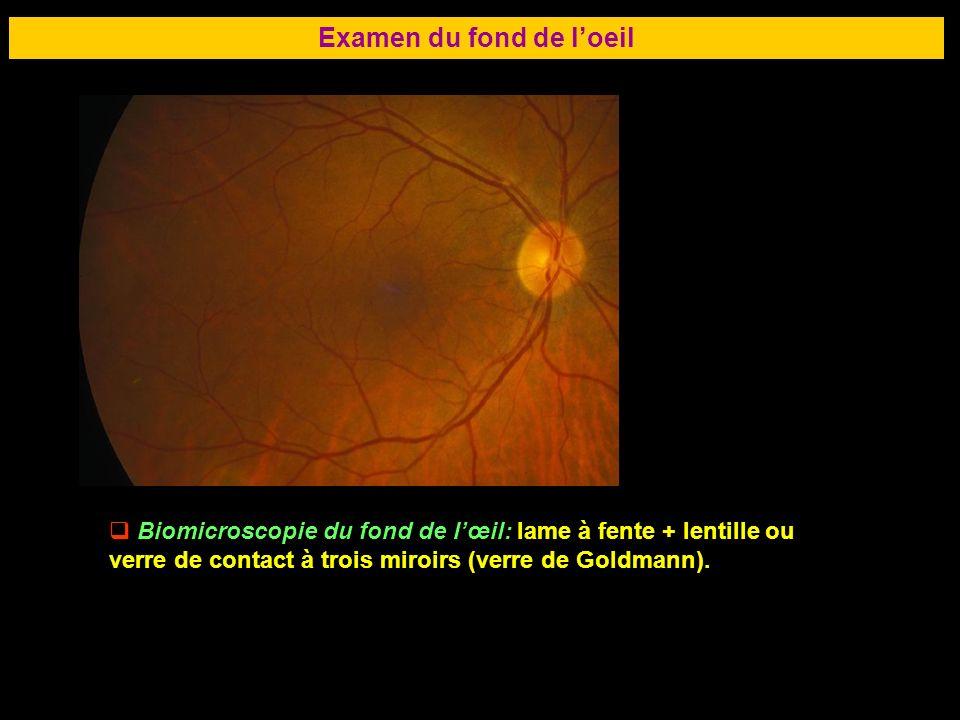 Examen du fond de l'oeil