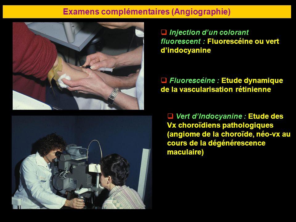 Examens complémentaires (Angiographie)