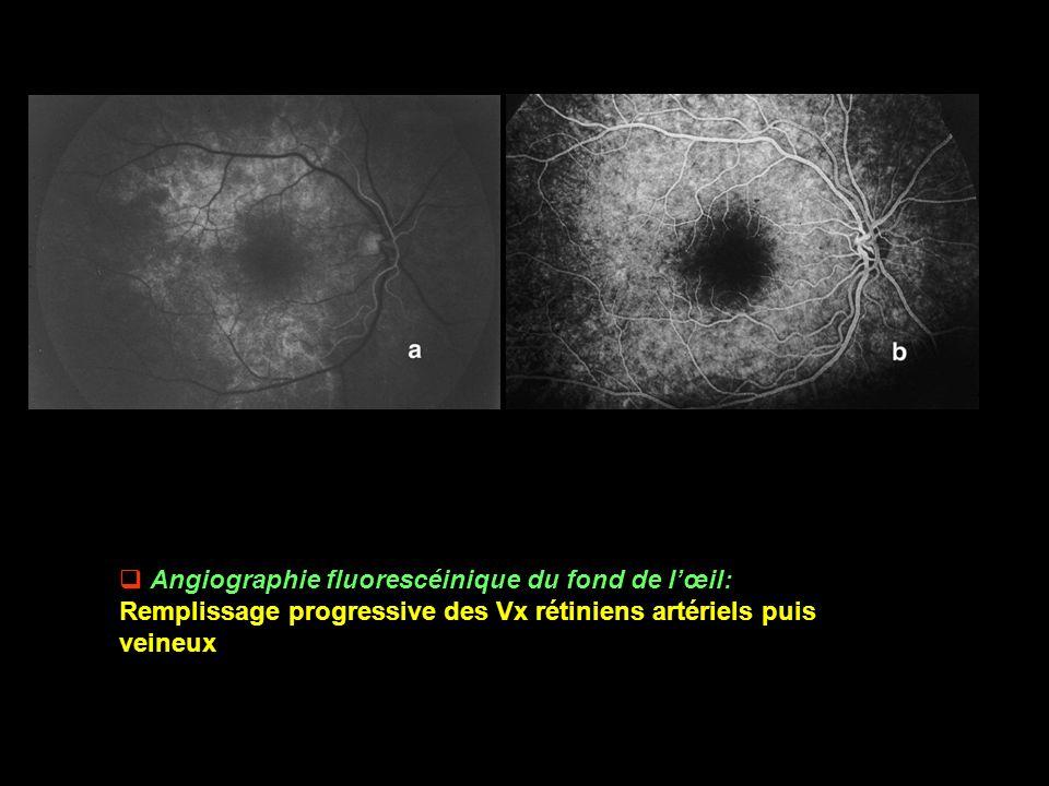 Angiographie fluorescéinique du fond de l'œil: Remplissage progressive des Vx rétiniens artériels puis veineux