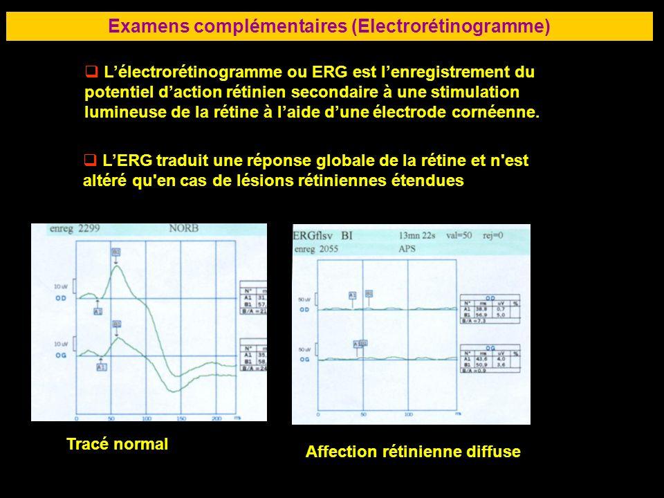 Examens complémentaires (Electrorétinogramme)
