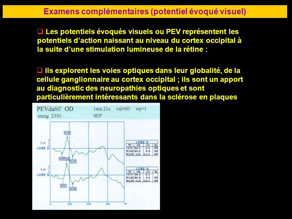 Examens complémentaires (potentiel évoqué visuel)