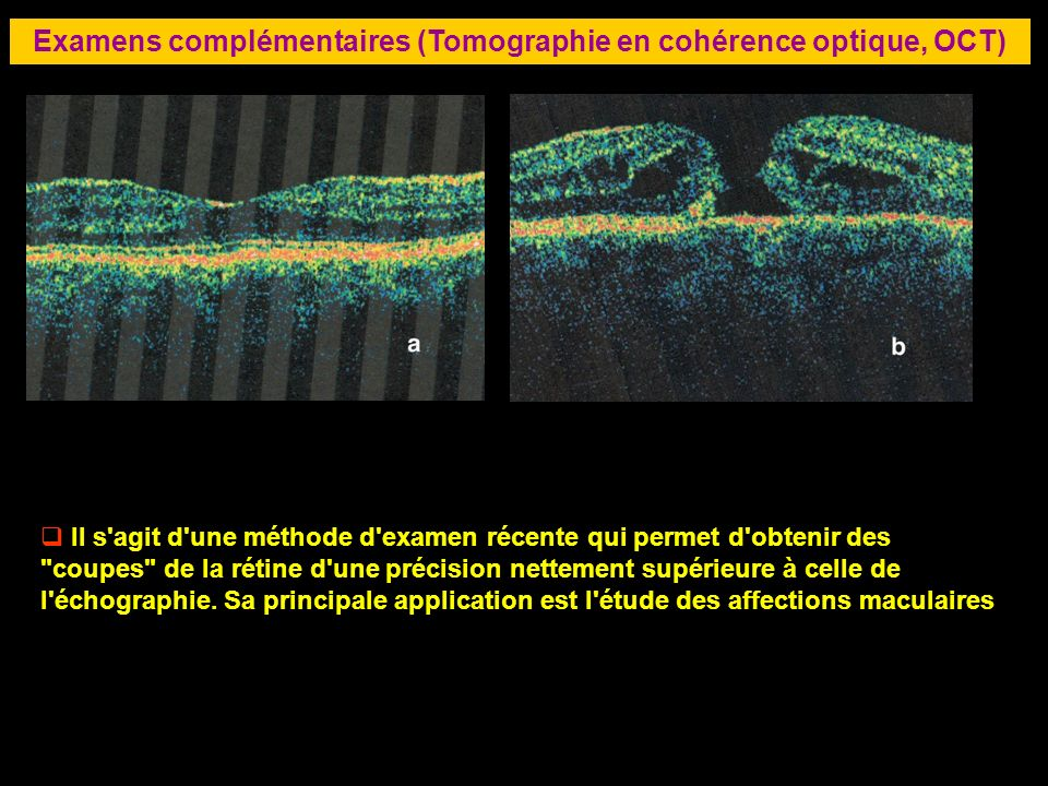Examens complémentaires (Tomographie en cohérence optique, OCT)