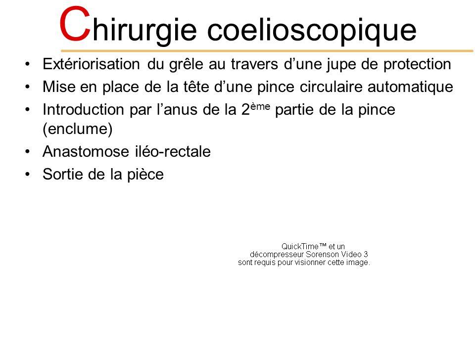 Chirurgie coelioscopique