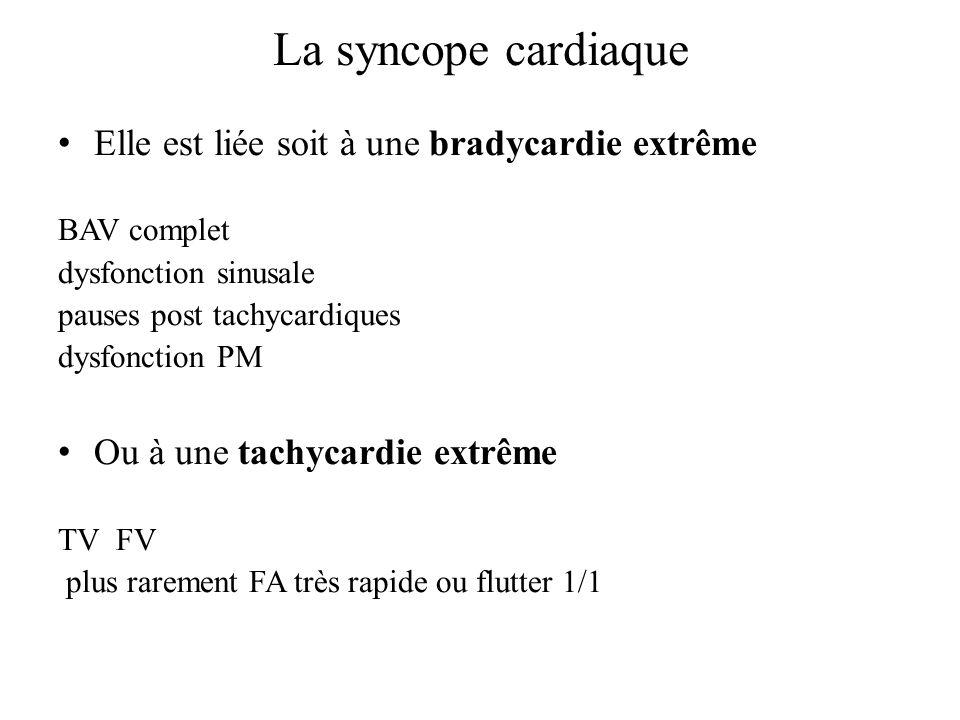 La syncope cardiaque Elle est liée soit à une bradycardie extrême