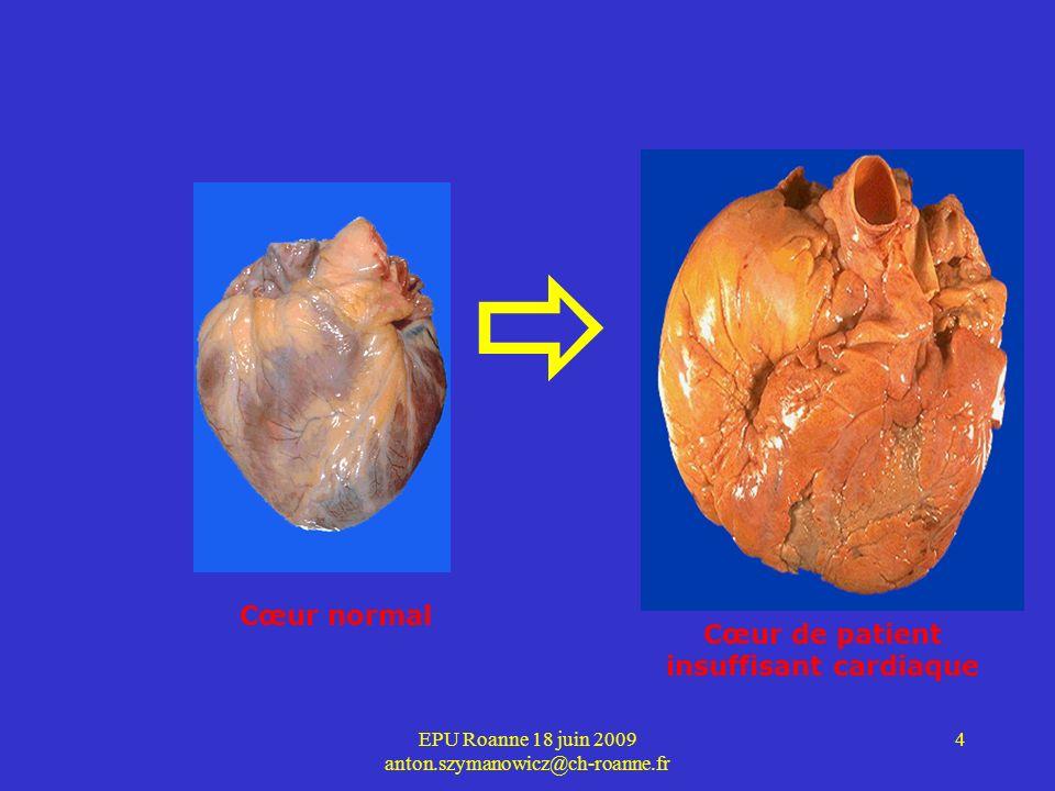 insuffisant cardiaque