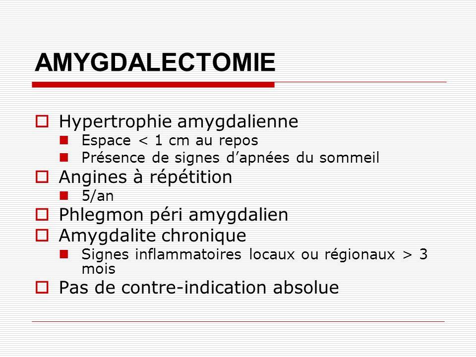 AMYGDALECTOMIE Hypertrophie amygdalienne Angines à répétition