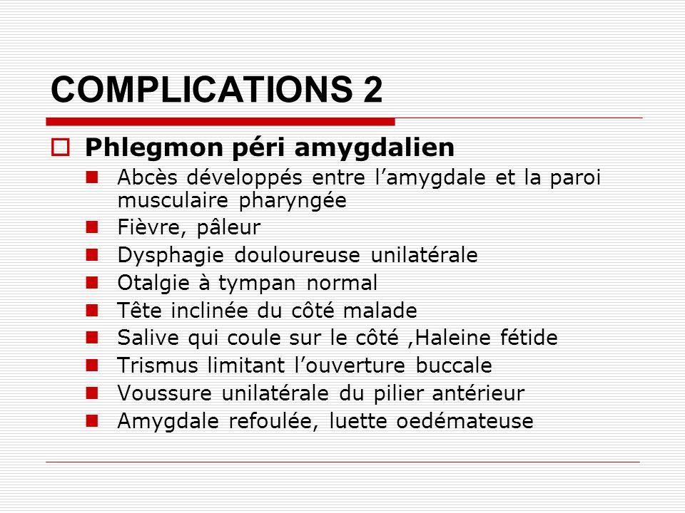 COMPLICATIONS 2 Phlegmon péri amygdalien