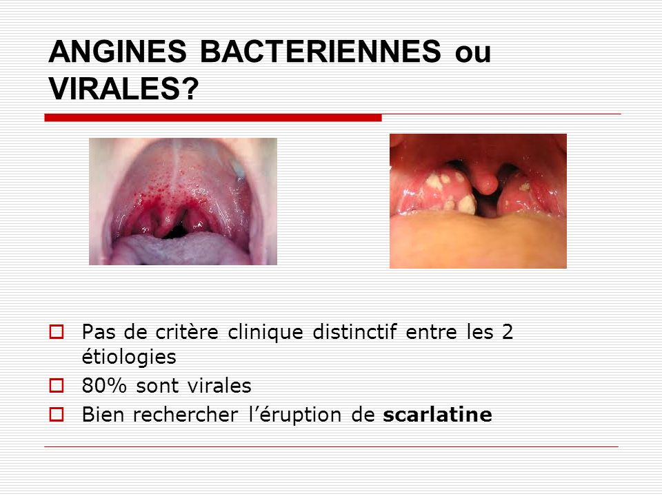ANGINES BACTERIENNES ou VIRALES