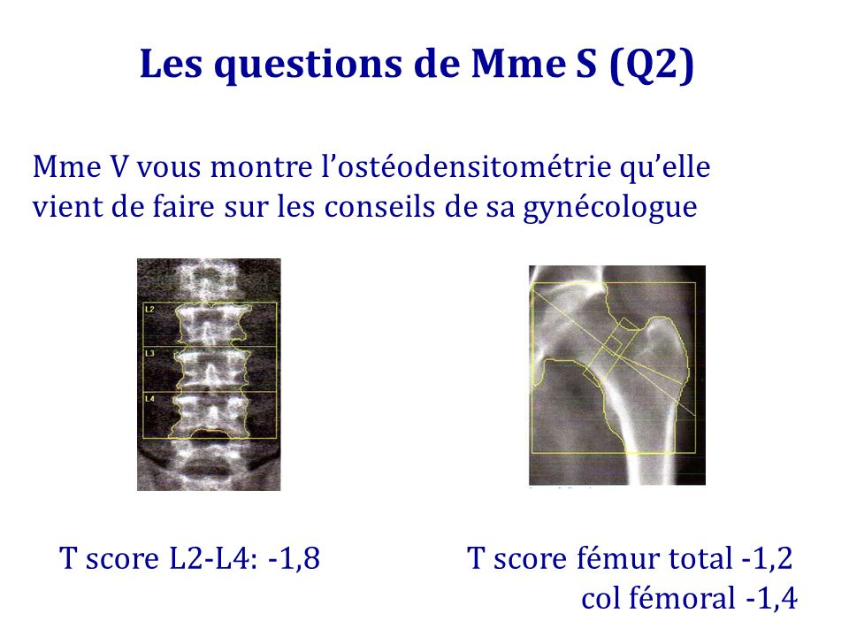 Les questions de Mme S (Q2)