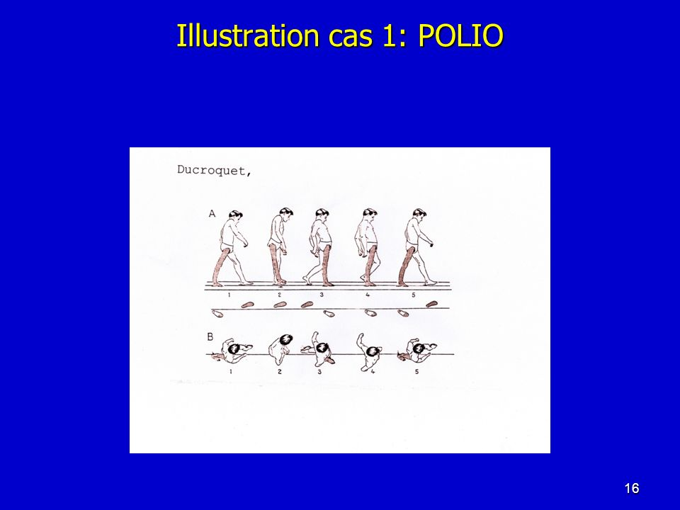 Illustration cas 1: POLIO