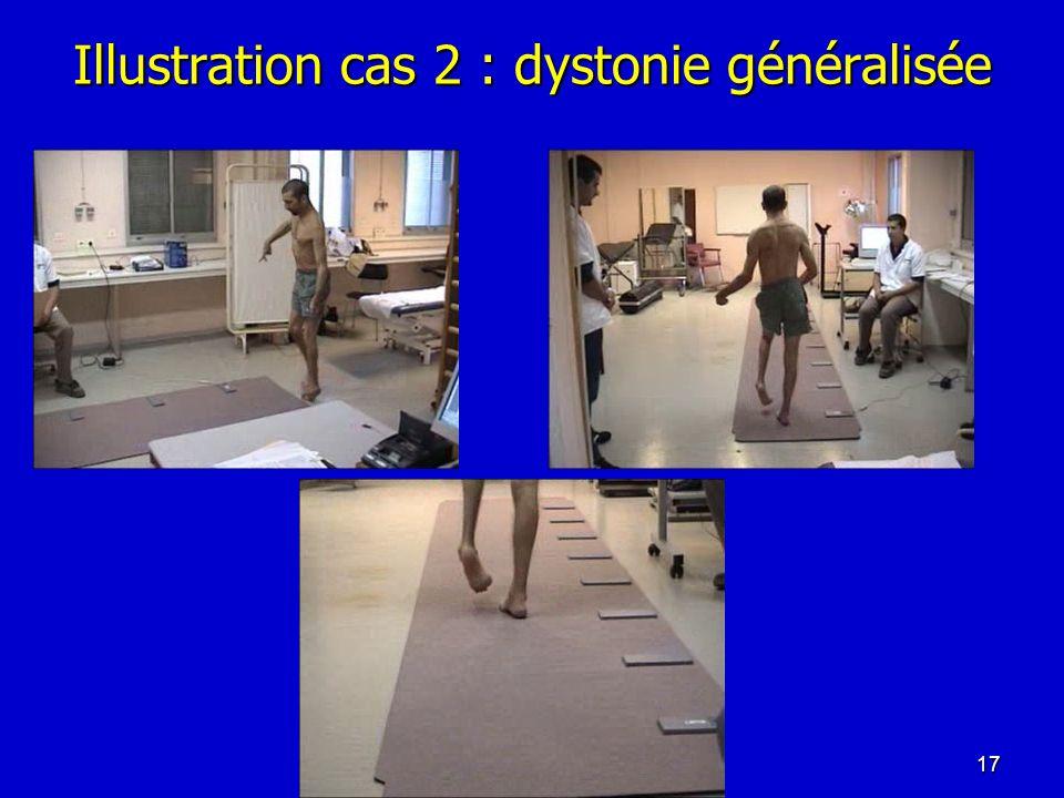 Illustration cas 2 : dystonie généralisée