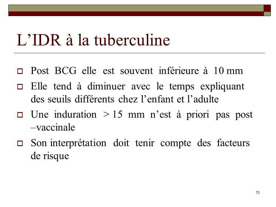 L'IDR à la tuberculine Post BCG elle est souvent inférieure à 10 mm