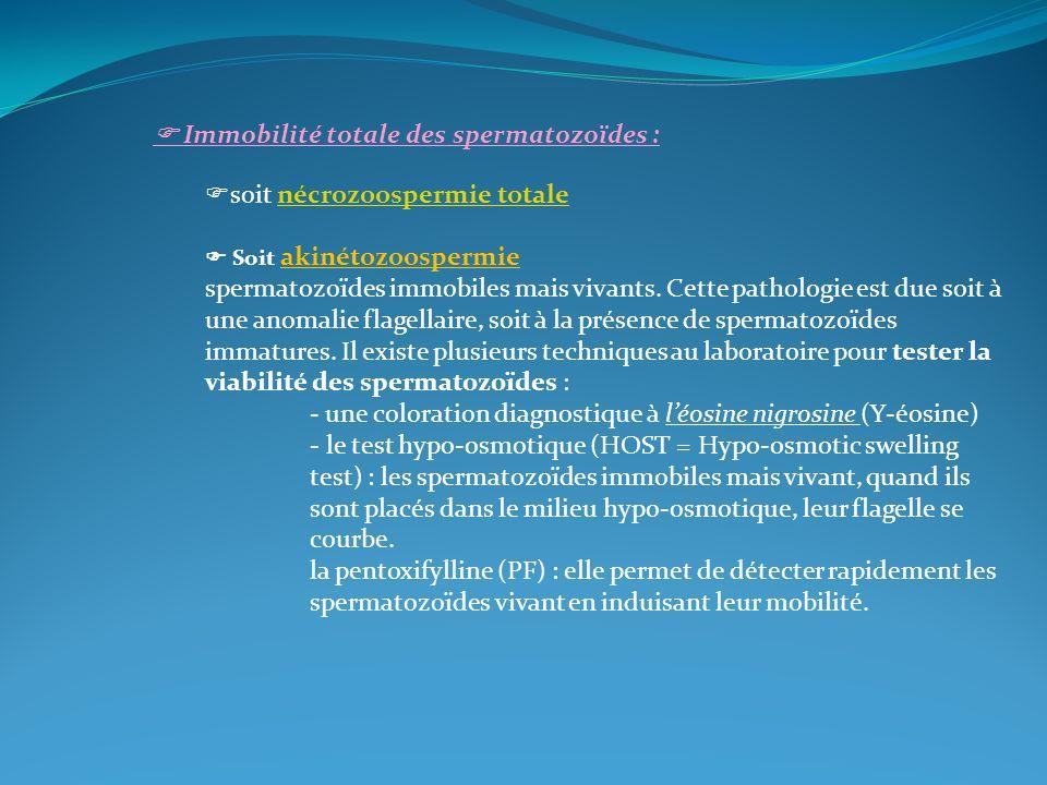  Immobilité totale des spermatozoïdes : soit nécrozoospermie totale