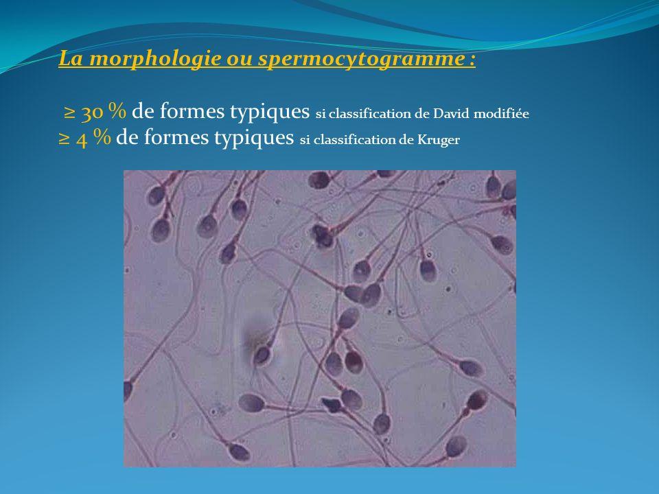 La morphologie ou spermocytogramme :