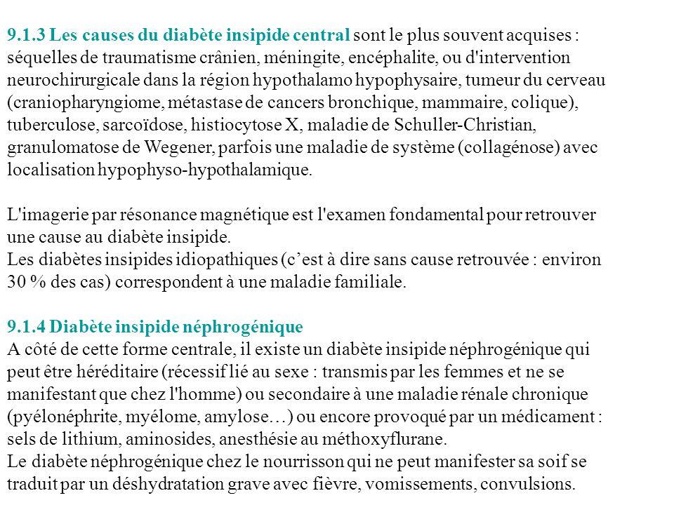 9.1.3 Les causes du diabète insipide central sont le plus souvent acquises :