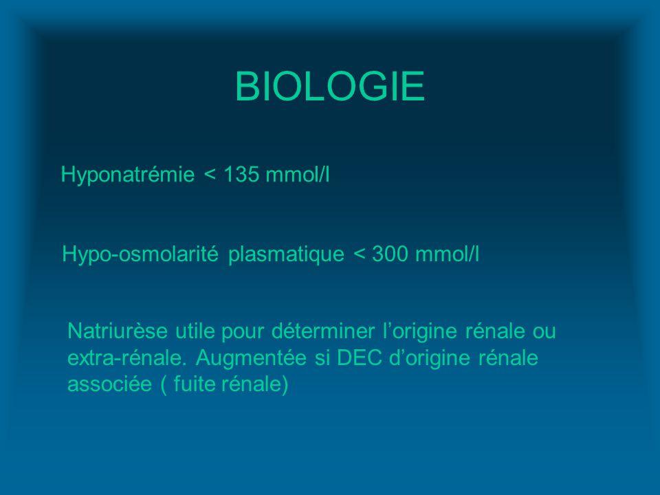 BIOLOGIE Hyponatrémie < 135 mmol/l
