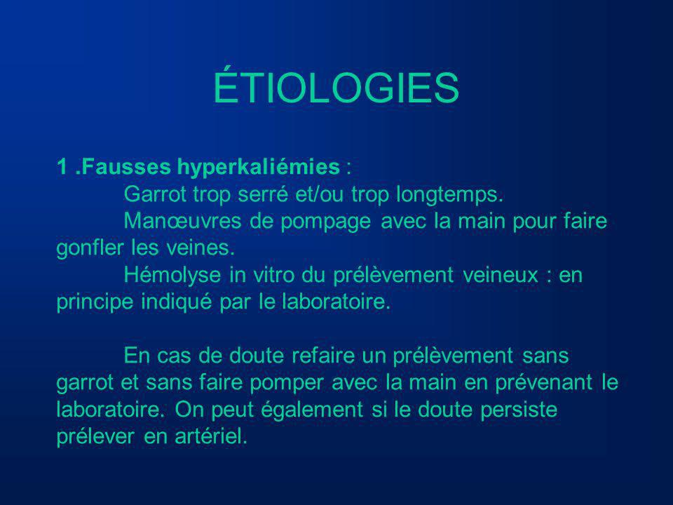 ÉTIOLOGIES 1 .Fausses hyperkaliémies :