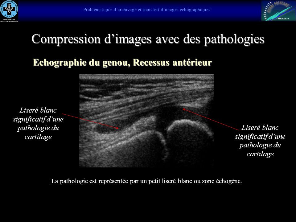 Compression d'images avec des pathologies