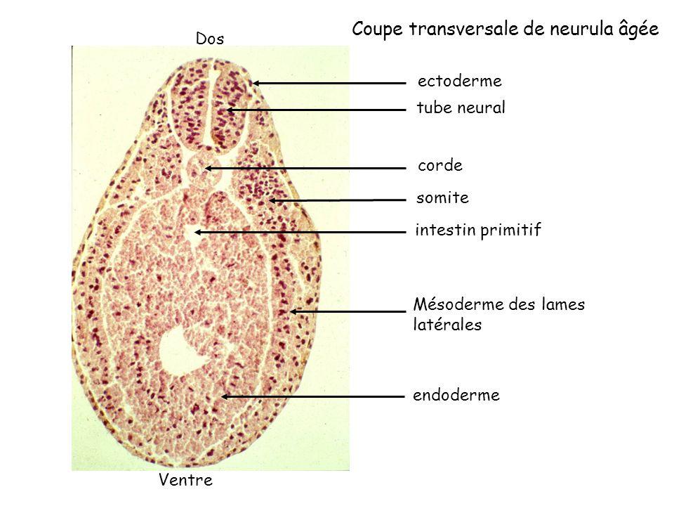 Coupe transversale de neurula âgée