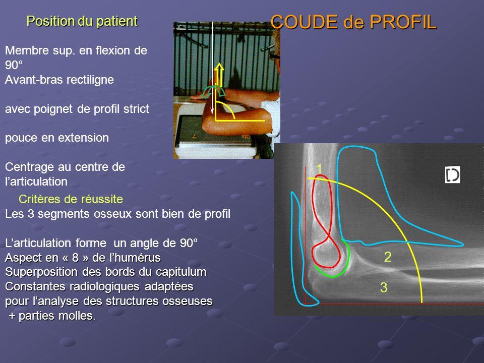 COUDE de PROFIL Position du patient 1 2 3