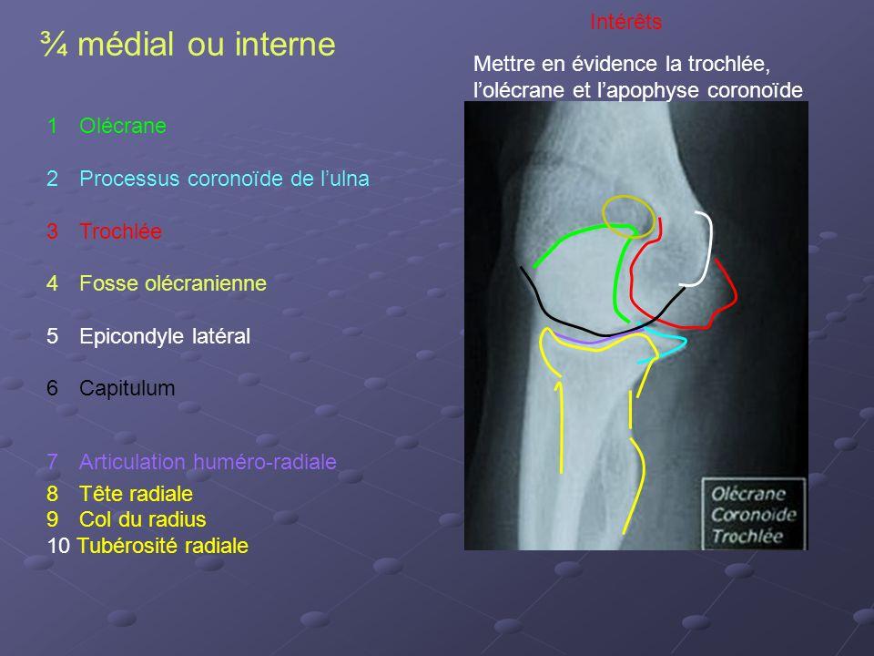 ¾ médial ou interne Intérêts Mettre en évidence la trochlée,
