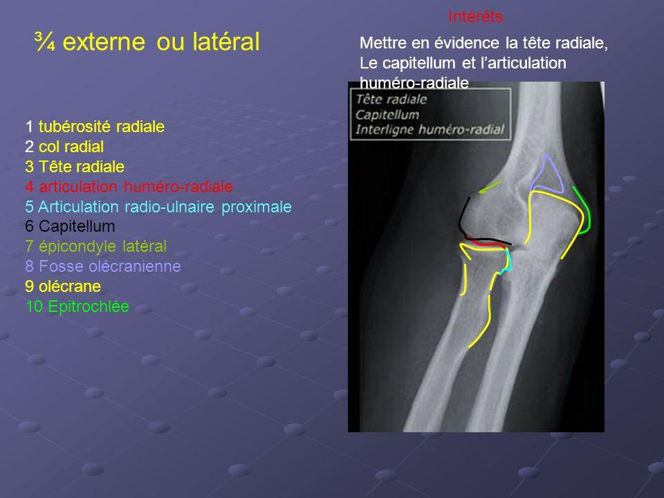 ¾ externe ou latéral Intérêts Mettre en évidence la tête radiale,