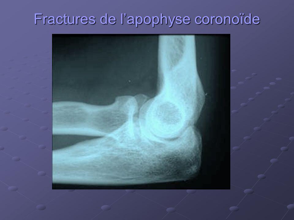 Fractures de l'apophyse coronoïde