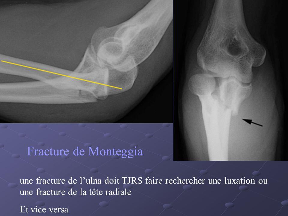 Fracture de Monteggia dans sa variété haute.