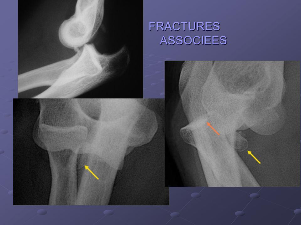 FRACTURES ASSOCIEES Petites fractures n'empêchent pas la réduction