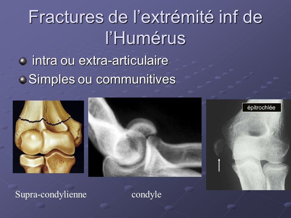 Fractures de l'extrémité inf de l'Humérus