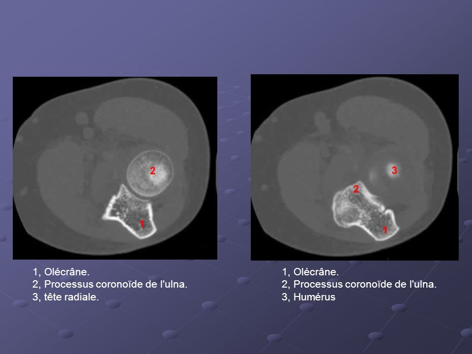 1, Olécrâne. 2, Processus coronoïde de l ulna. 3, tête radiale. 1, Olécrâne. 2, Processus coronoïde de l ulna.