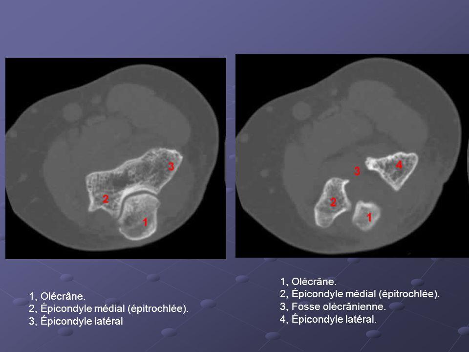 1, Olécrâne. 2, Épicondyle médial (épitrochlée). 3, Fosse olécrânienne. 4, Épicondyle latéral. 1, Olécrâne.