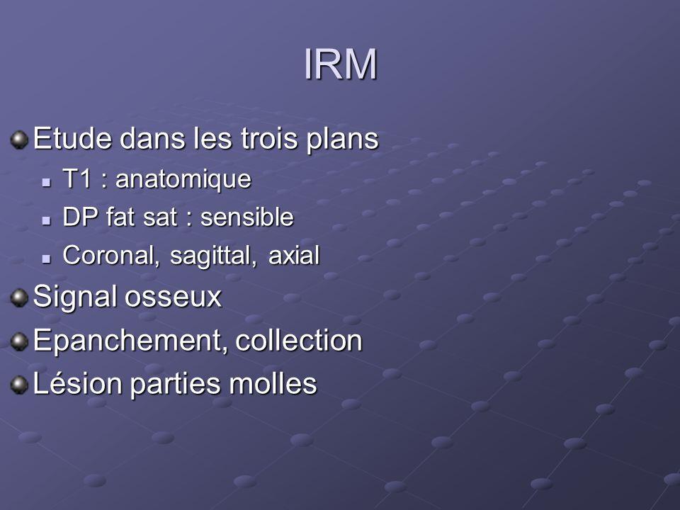 IRM Etude dans les trois plans Signal osseux Epanchement, collection