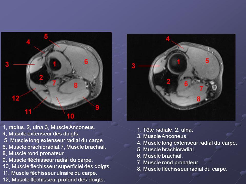 1, radius. 2, ulna.3, Muscle Anconeus.