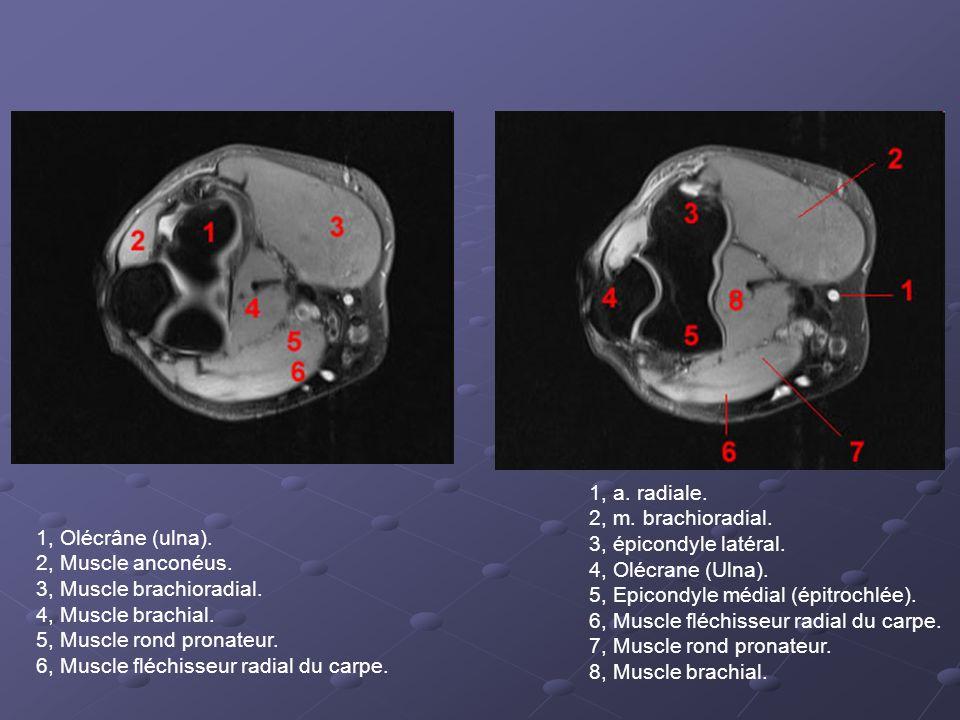 1, a. radiale. 2, m. brachioradial. 3, épicondyle latéral. 4, Olécrane (Ulna). 5, Epicondyle médial (épitrochlée).