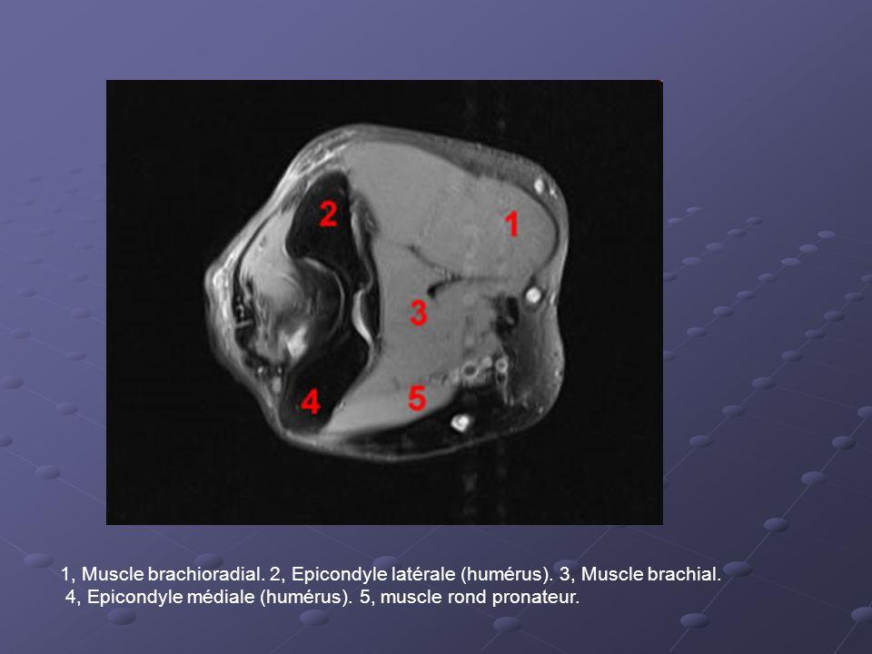 1, Muscle brachioradial. 2, Epicondyle latérale (humérus)