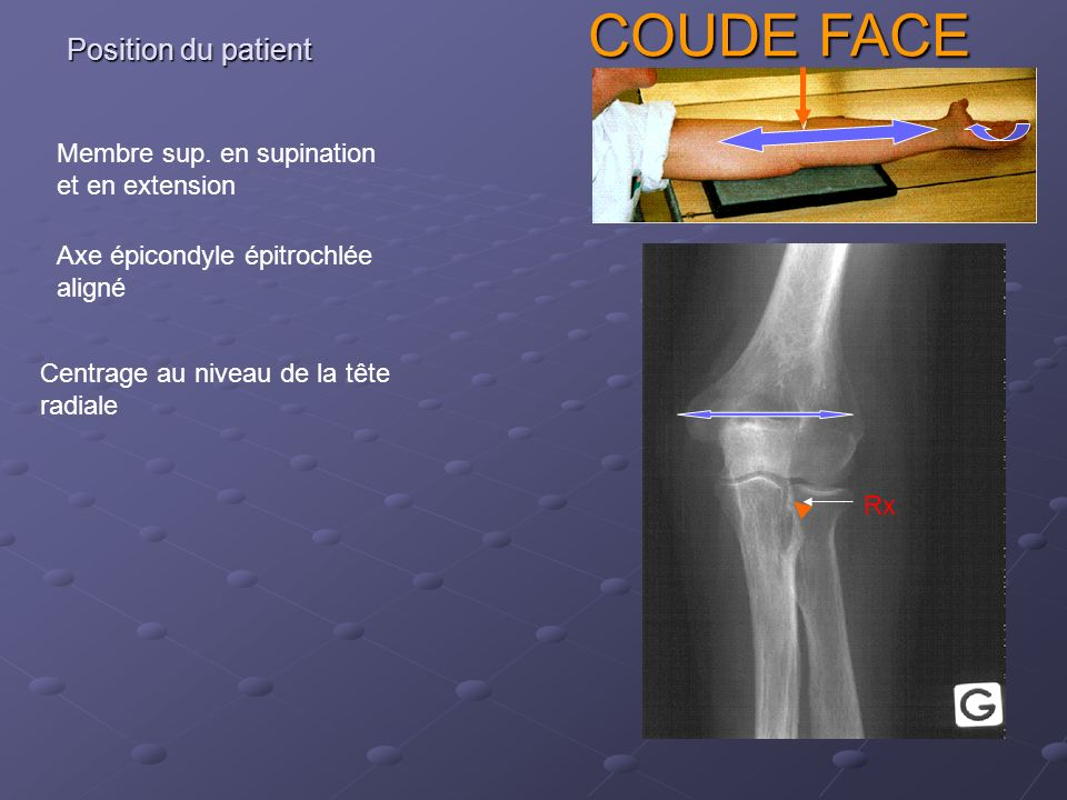 COUDE FACE Position du patient Membre sup. en supination