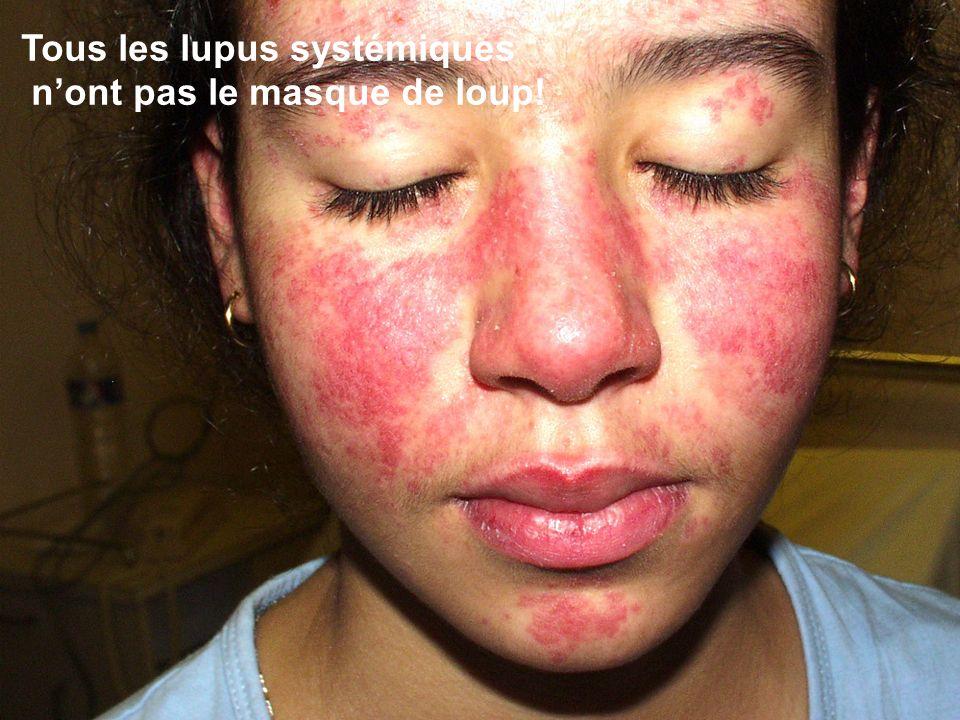 Tous les lupus systémiques