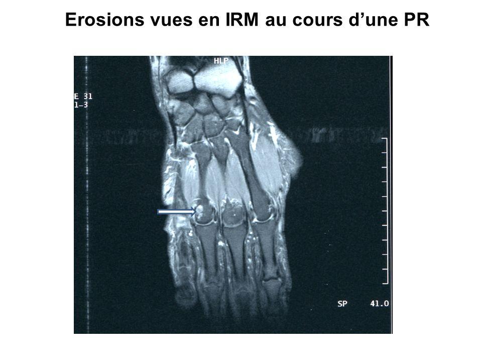 Erosions vues en IRM au cours d'une PR