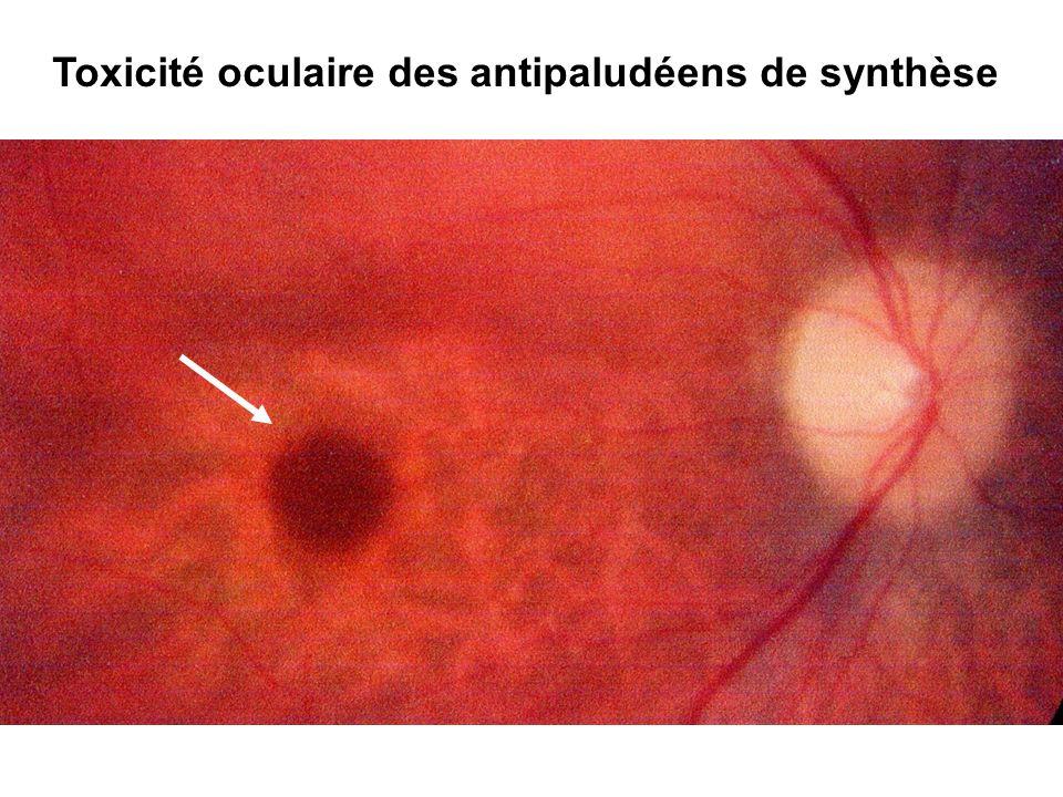Toxicité oculaire des antipaludéens de synthèse