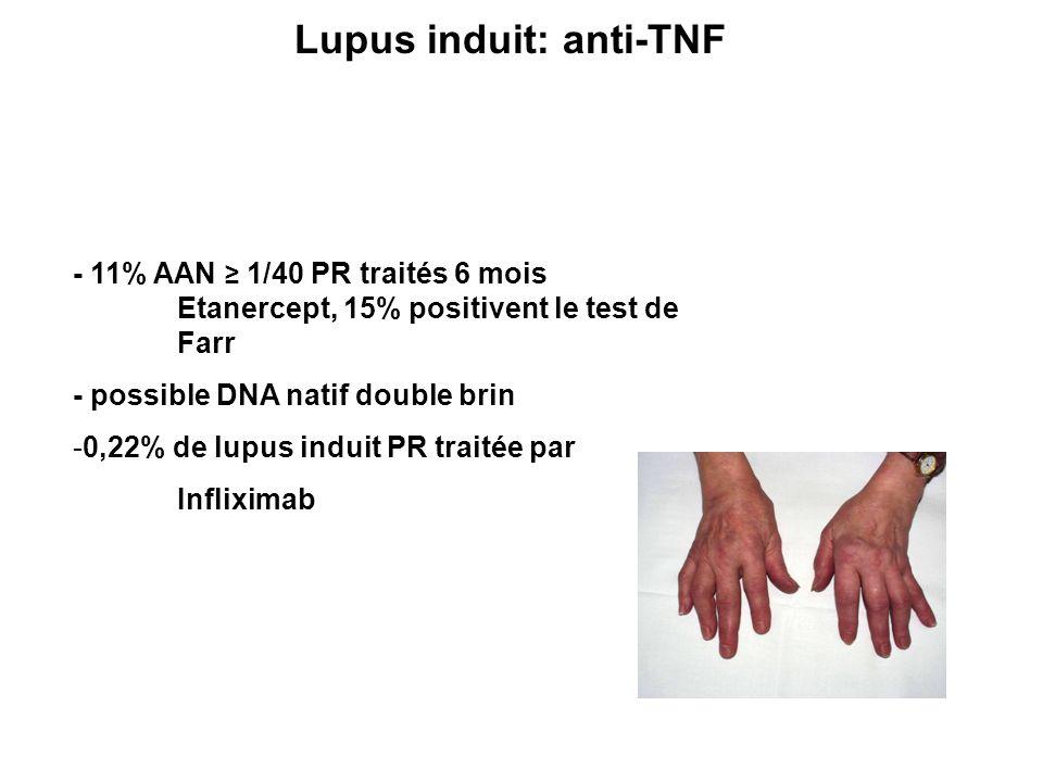 Lupus induit: anti-TNF