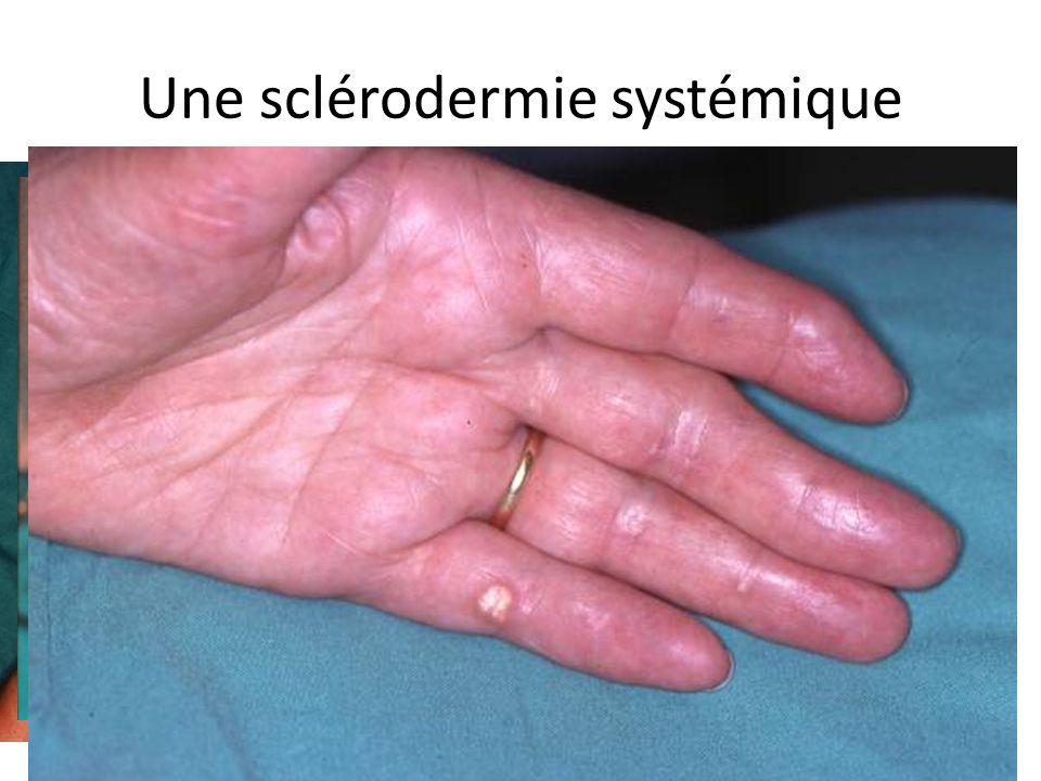 Une sclérodermie systémique