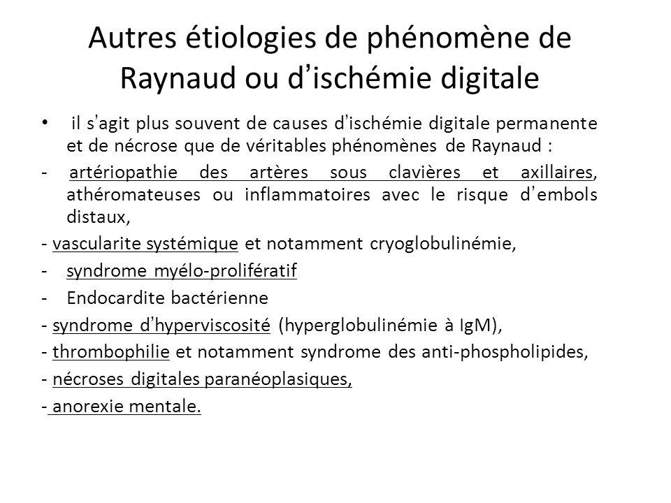 Autres étiologies de phénomène de Raynaud ou d'ischémie digitale