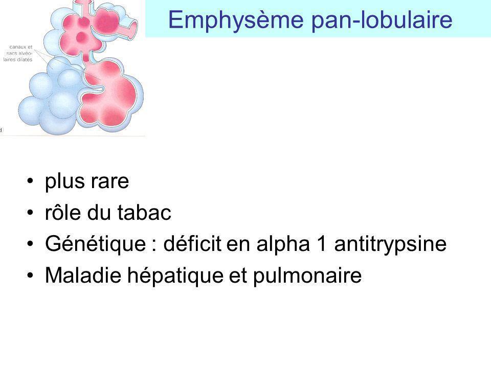 Emphysème pan-lobulaire