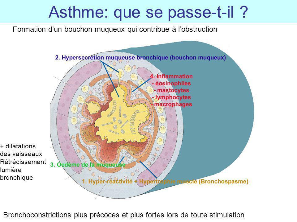 Asthme: que se passe-t-il