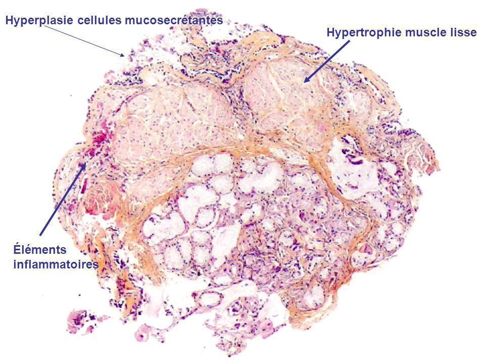 Hyperplasie cellules mucosecrétantes