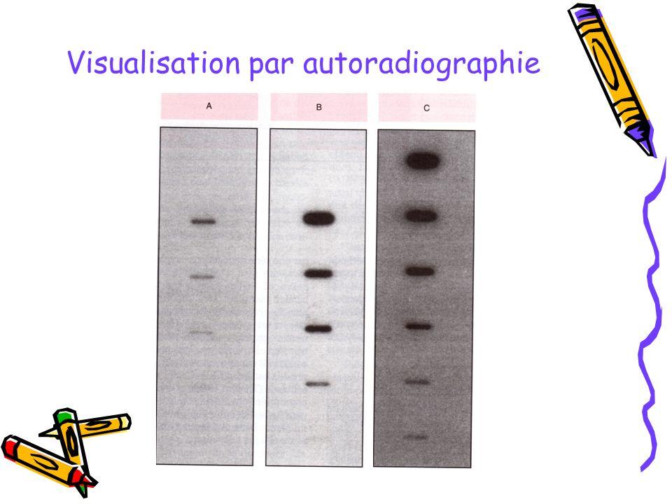 Visualisation par autoradiographie